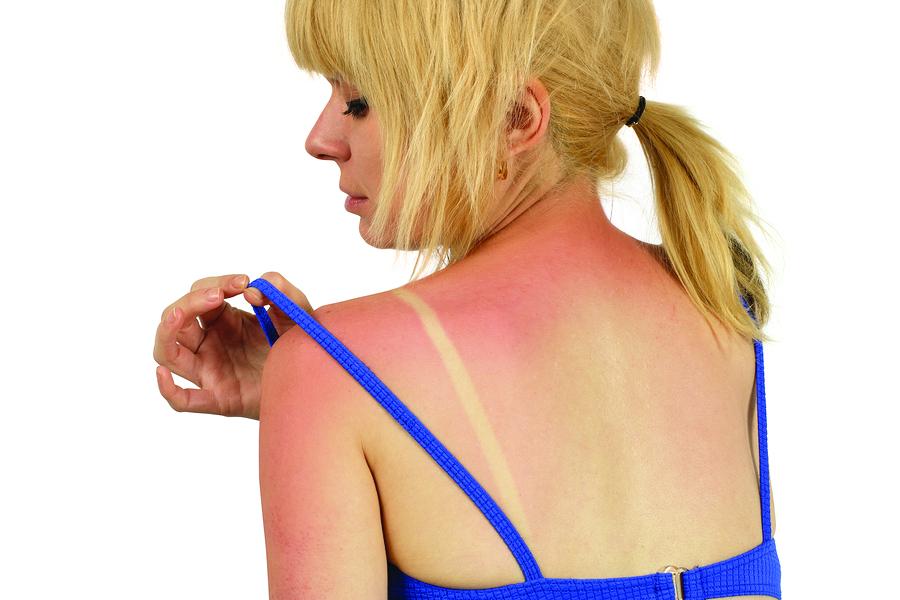 Семь популярных мифов о солнцезащитных кремах, которые могут быть опасны для здоровья и кошелька
